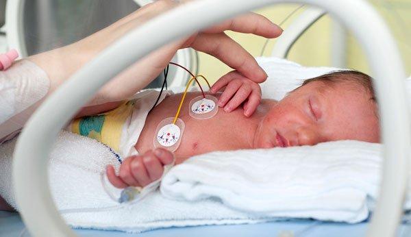 Herzfehler Baby Schwangerschaft