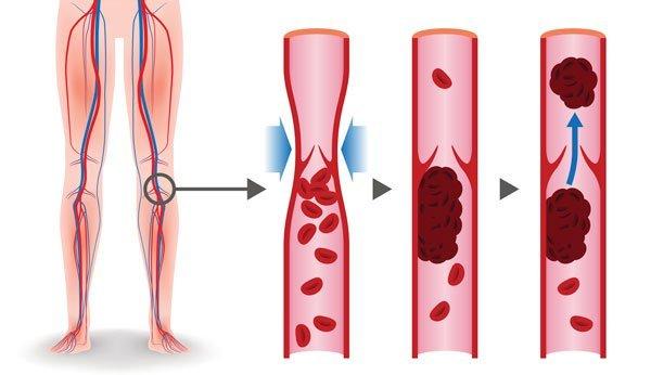 Gips thrombose fuß Thrombosespritzen und