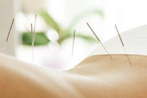 Alternativmedizin: Akupunktur für gestresste Eltern