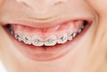 Teures Lächeln: Das kostet eine Zahnspange